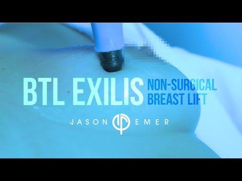 Non-Surgical Breast Lift    Laser Breast Lift   BTL Exilis   Radiofrequency Skin Tightening