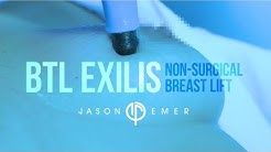 Non-Surgical Breast Lift |  Laser Breast Lift | BTL Exilis | Radiofrequency Skin Tightening