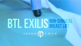 BTL Exilis | Non-Surgical Breast Lift | Radiofrequency Skin Tightening