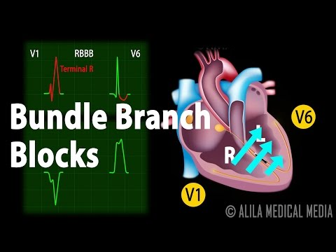 Bundle Branch Block, Animation.