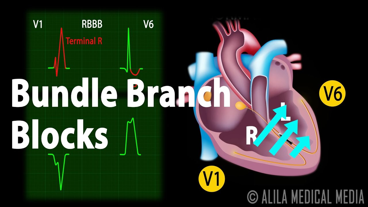 Bundle Branch Block, Animation