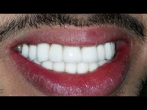 İSTER İNANIN İSTER İNANMAYIN ; 10 Dakikada Bembeyaz Dişlere Sahip Olun ( Süper Yöntem )