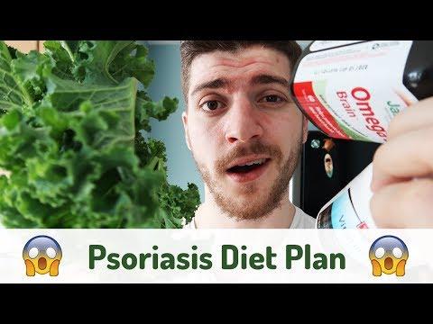 Psoriasis Diet Plan You WON'T Survive - Vlog #2
