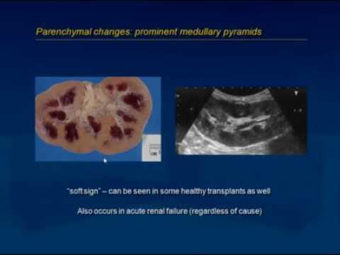 Renal Transplant Ultrasound