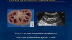 hqdefault - Renal Ultrasound Transplanted Kidney