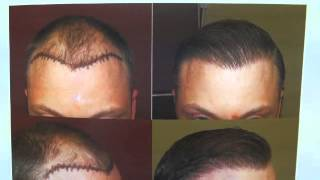 Caucasian Male 1 Year Follow Up Hair Surgery Before After Photos Dr. Diep www.mhtaclinic.com