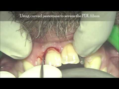 Central incisor with external root resorption - extraction video