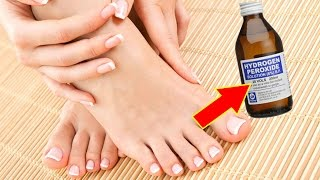 Oxygenated Water to Eliminate Yeast in the Nail ᴴᴰ