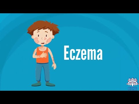 What is Eczema? Causes, Signs and Symptoms, Diagnosis and Treatment.