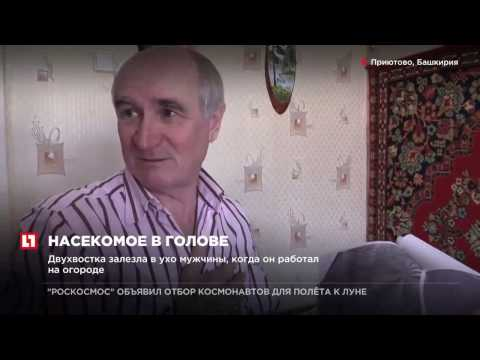 Башкирский пенсионер с сентября 2016 года живет с двухвостка в голове