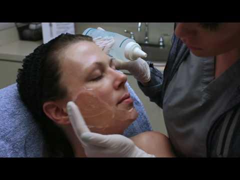hqdefault - Does Photo Rejuvenation Work For Acne