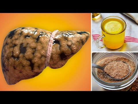 How to Treat Fatty Liver Disease Naturally at Home