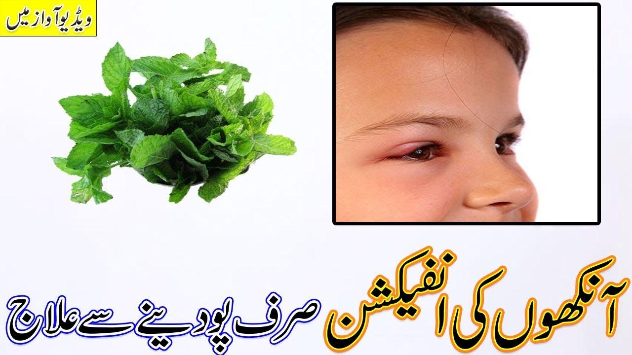 Eyes infection Treatment in Urdu / Aankhon Ki infection Ka