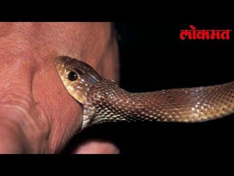 Lokmat Health Tips | साप चावला ? घाबरु नका, काय करायचे ते जाणून घ्या |  Lokmat News