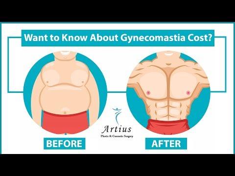 Know The Gynecomastia Surgery Cost In Mumbai | Male Breast Reduction Surgery Cost In Mumbai