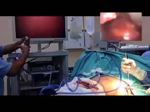 îndepărtarea operațiunilor varico video)