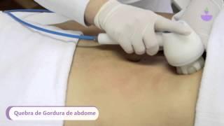 Endermologia para Gordura Localizada, Extrias e  Flacidez