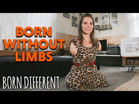 Born Without Limbs And I Can Still Do Anything | BORN DIFFERENT