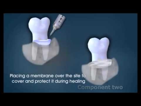 Коренной зуб болит и шатается