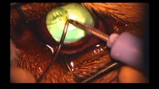 Набухающая катаракта. Собака