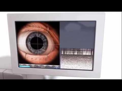 Femtosecond laser cataract surgery in London - Mr Romesh Angunawela Moorfields Eye Hospital