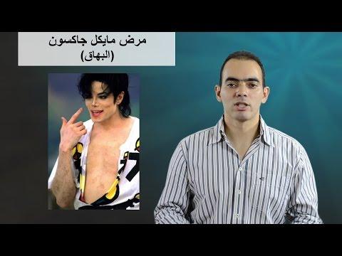 6b1d12656 المرض اللي لازم كل الناس تفهمه (البهاق) - د. محمد الناظر