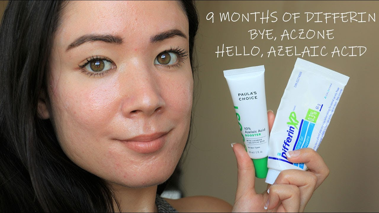 Skin Update 2 9 Months Of Differin Before Afters Of Acne Scars Michxmash Youtube