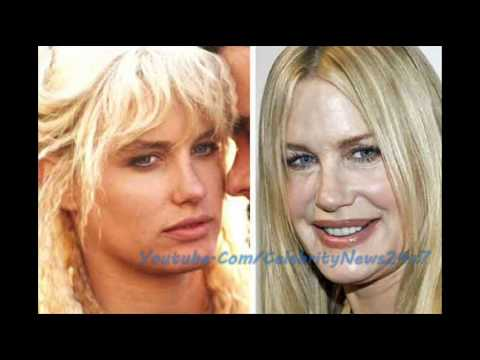 Daryl Hannah Plastic Surgery Before And After Hd Youtube