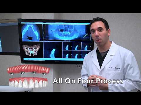 All on 4 Dental Implants: What to Expect