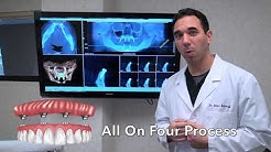 All on 4 Dental Implants: What to Expect (2018)