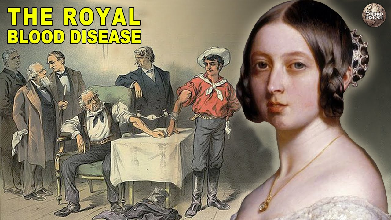 All About Hemophilia, The Royal Blood Disease - YouTube