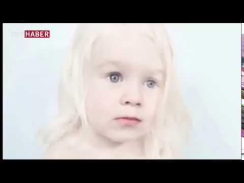 Albinizmlilerin tek farkı pigment eksikliği ile doğmaları