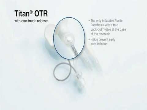 titan touch penile prosthesis