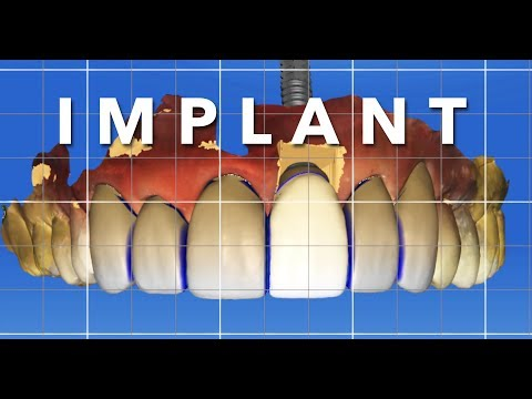 Dental IMPLANT, VENEERS, CROWNS - 3D Computer Guided Cosmetic Dentistry Smile Transformation