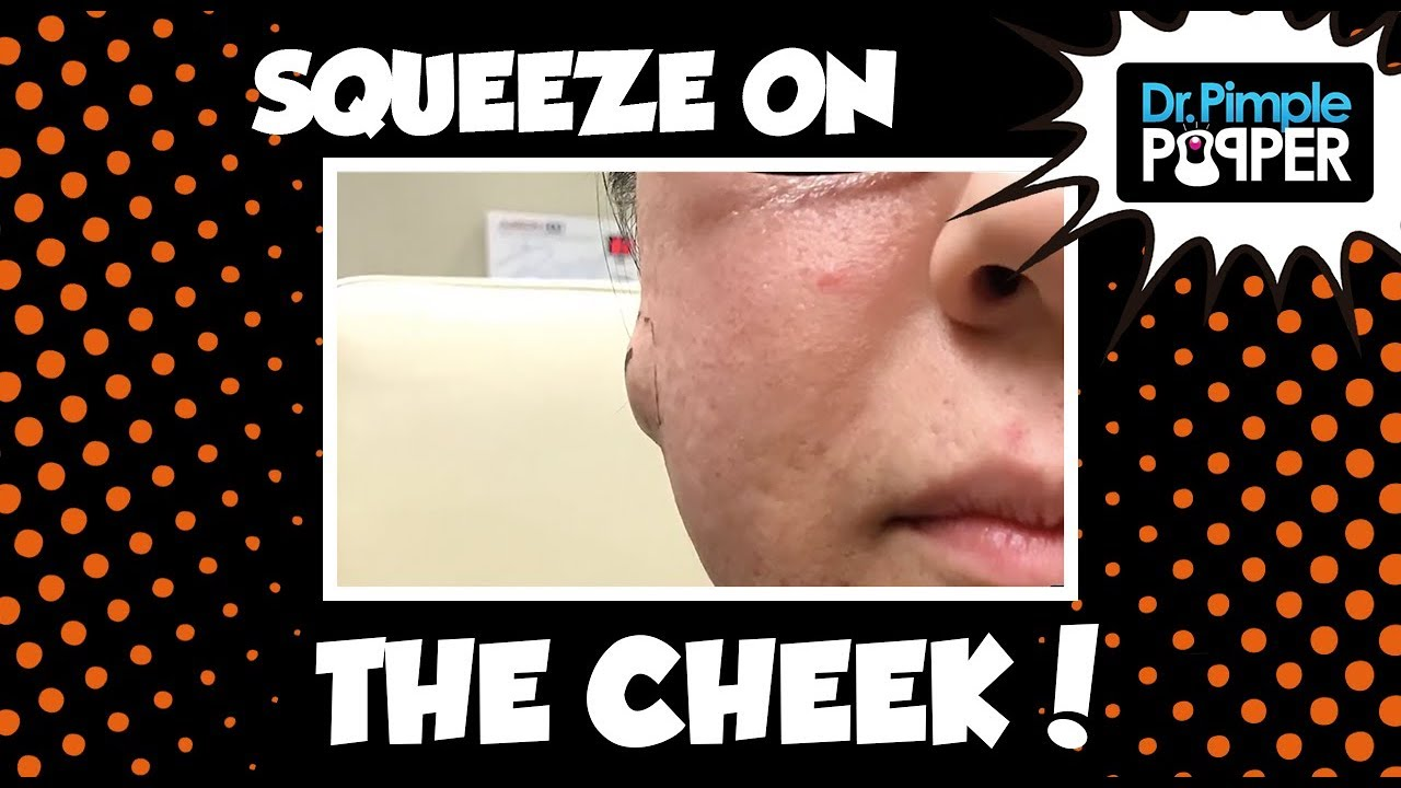 Pimple Video: Dr  Pimple Popper Is Here to Ruin Cheese for