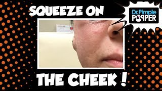 It Pays to be Per-Cyst-ant... thumbnail