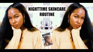 UNSPONSORED Nighttime Skincare Routine |HOW I CLEARED MY ACNE| Oily Skin