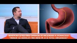 Mihai Ionescu, vorbeste despre operatia de micsorare de stomac