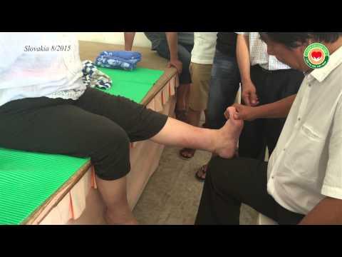 Khớp gối đau, chân đau, đứng lên ngồi xuống khó - bấm huyệt Thập Chỉ Đạo (TCLT)