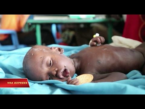 Một triệu người bị ảnh hưởng bởi nạn đói ở Nam Sudan