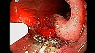 Hemorrhage due to Duodenal Ulcer