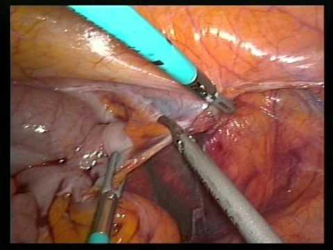 Laparoscopic en-block sigmoid colectomy, appendect...