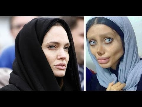 Sahar Tabar underwent... In Order To Look Like Angelina Jolie
