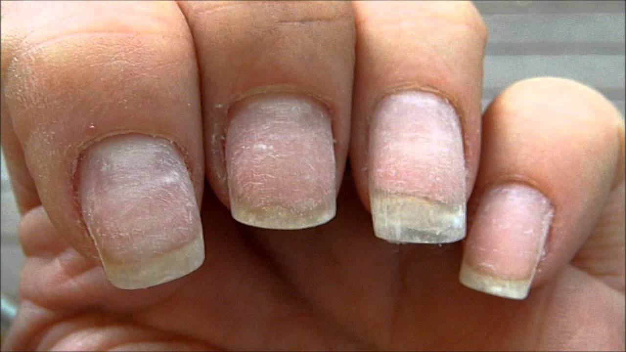 LOOK My nails after a soak off ! LOOK - YouTube