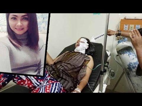 Rujuk Ditolak Suami Kalap, Mantan Istri Jadi Korban Air Keras Mp3