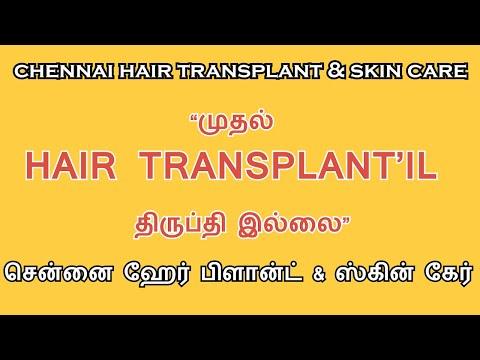fue-treatment/-tamil-hair-transplant/-chennai-hair-plant