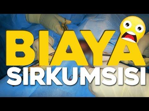 biaya-sunat-pria-dewasa-/-operasi-sirkumsisi-di-jakarta-/-awi-willyanto