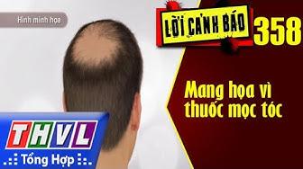 THVL   Lời cảnh báo – Kỳ 358: Mang họa vì thuốc mọc tóc