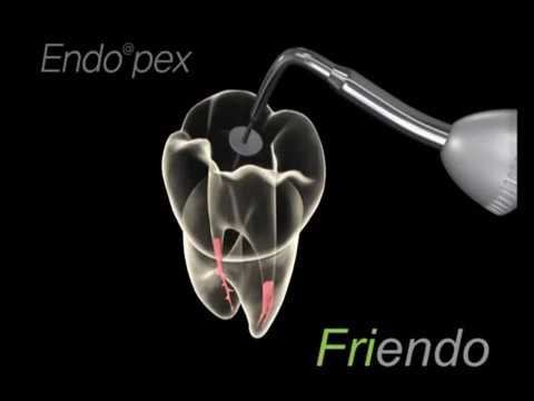 Пломбируют ли верхние зубы мудрости?