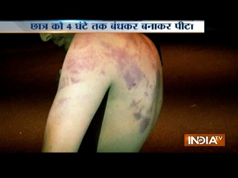 Shocking Ragging : Engineering Student Ragged And Brutally Beaten By Seniors In Greater Noida